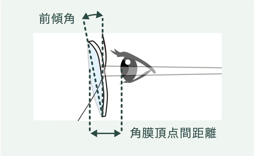 光学的観点